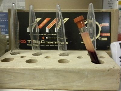 After centrifugation the blood is separated and the liquid portion, serum, can be pipetted off.