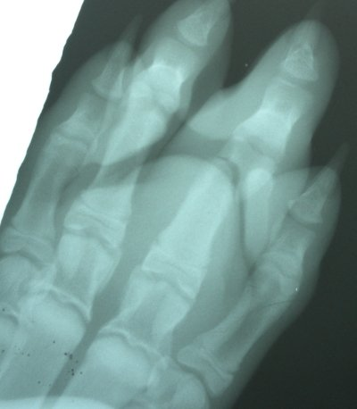 The second digit from your right, middle phalanx, has a Salter I fracture.