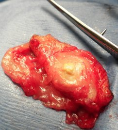 Larger cyst, subcutaneous fat dissected away to reveal incised wall of cyst.