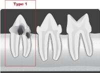 type1 tooth resporption