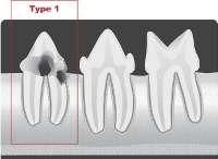 type1 tooth resporption
