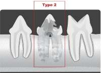 type2 tooth resorption