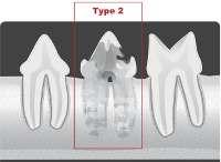 type2 tooth resorption