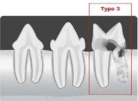 type3 tooth resorption