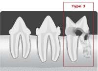 type3 tooth resorption